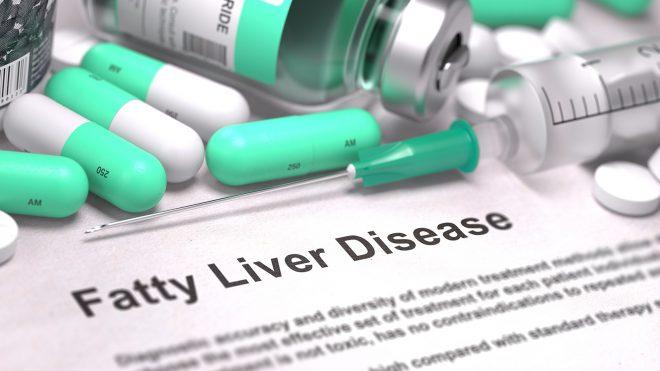 ما هي ظاهرة الكبد ألدهني أعراضها وعلاجها